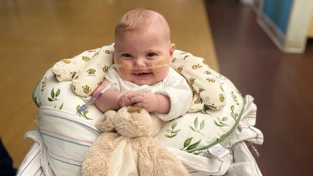 Cayson, nine months old, is a sweet, happy, and charming little boy, despite all he has been through. [Photo courtesy of Loma Linda University Health]